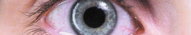 Requiem Eye